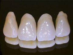 porcelain_dental_crowns.jpg
